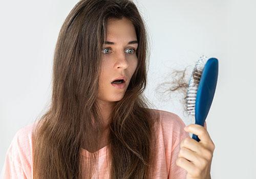 Caduta dei capelli, Haarverlust